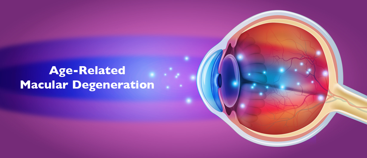 BRAND'S® Article - Age Related Macular Degeneration